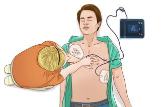 hjärt och lungräddning, hlr utbildning - Illustration: Wasim Hentati tel. 070-2736853 - HLR Experten