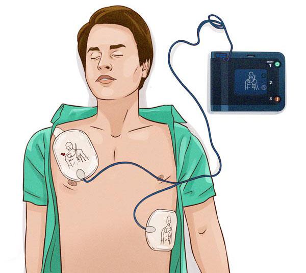 Hur använder man en hjärtstartare, hur gör man HLR, HLR utbildning, HLR kurs